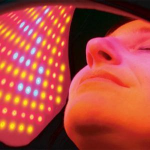 LED фототерапия – Червена светлина за лечение на пигментация
