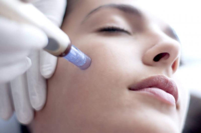 Инвазивна мезотерапия за лице